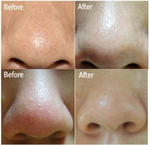 blackhead-off-sheet-1_3
